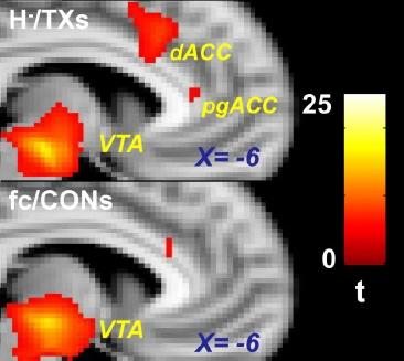 fcMRI
