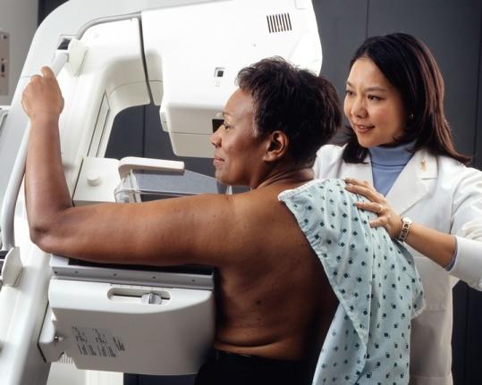 NIHMammogram