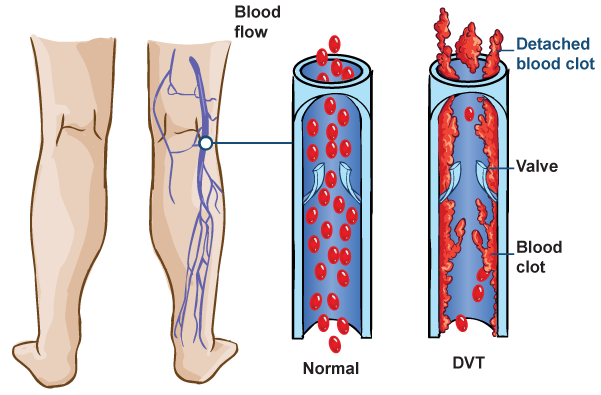 DVT_Diagram_1